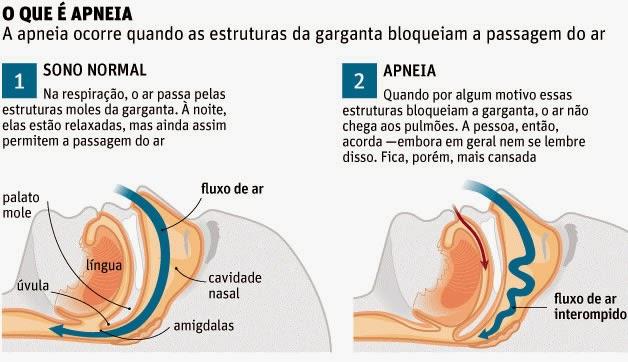 Apneia-Portal-Amigo-do-Idoso