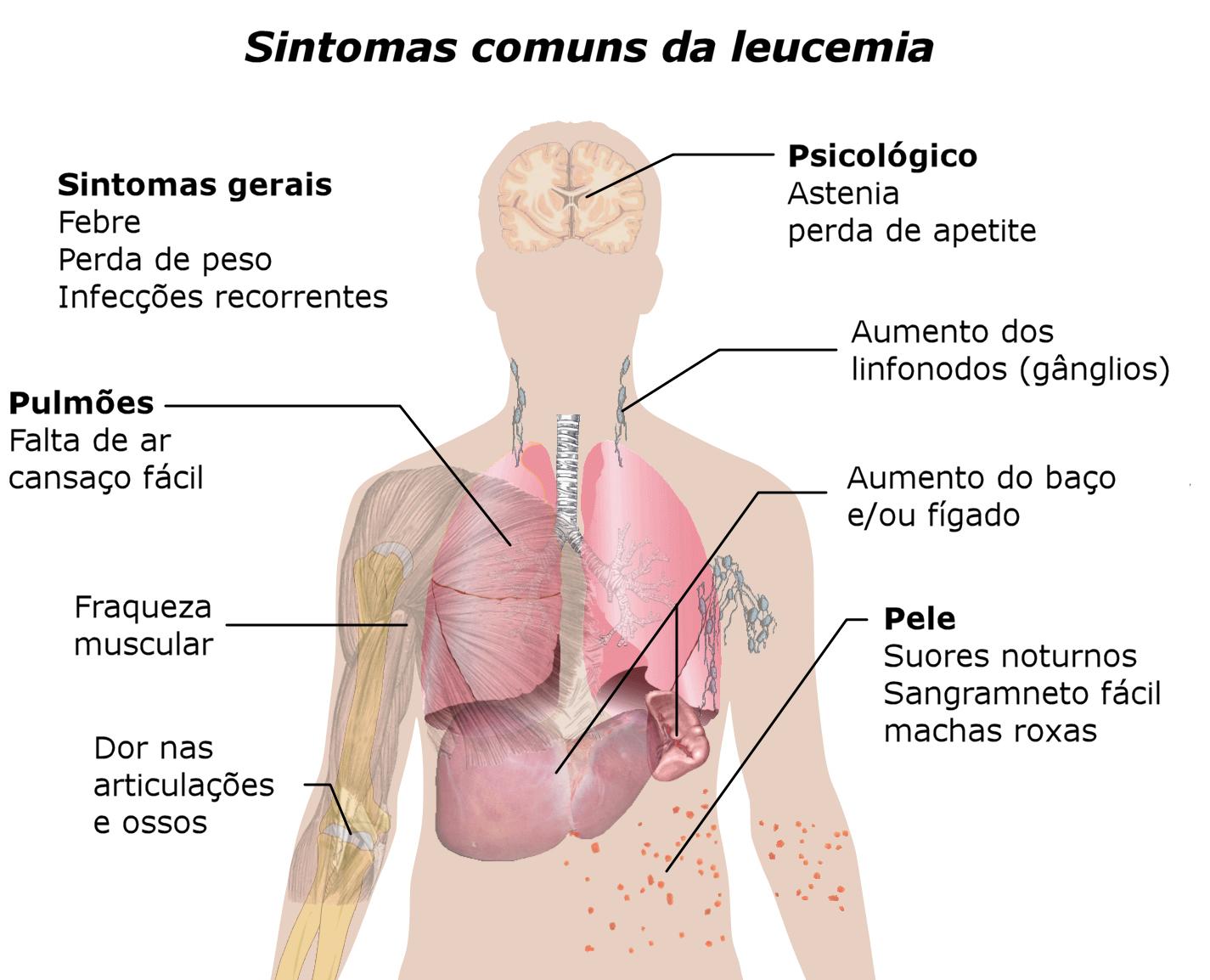 symptoms_of_leukemia