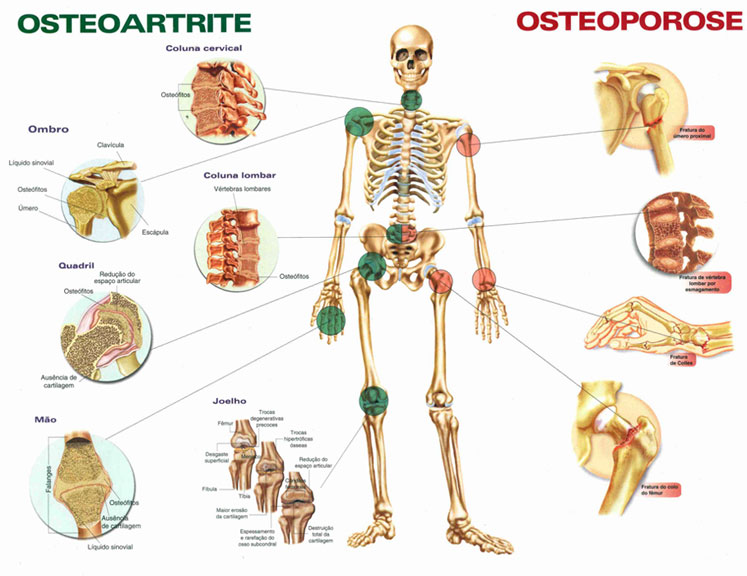 exercicios_resistencia_ajudam_a_conter_o_avanco_da_osteoporose