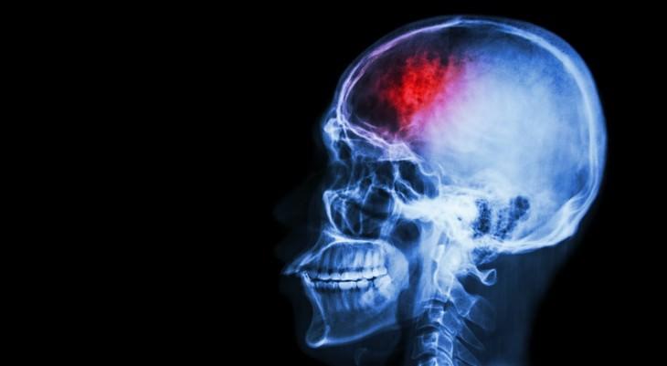 Doença Cerebrovascular (AVC)